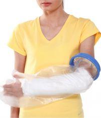 Cast Cover - Arm