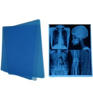 Medical X-Ray Films - Color Blue